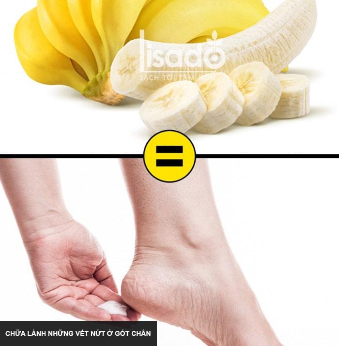 Chuối giúp chữa lành những vết nứt ở gót chân